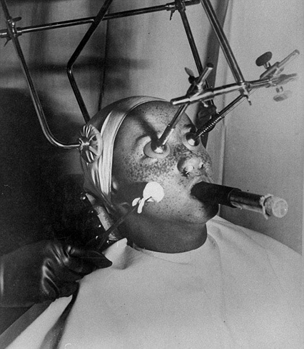 beauty procedures