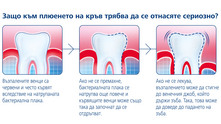 Зъб с натрупана бактериална плака