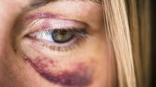 Как да се защитя при домашно насилие?
