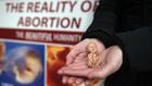 Аборти